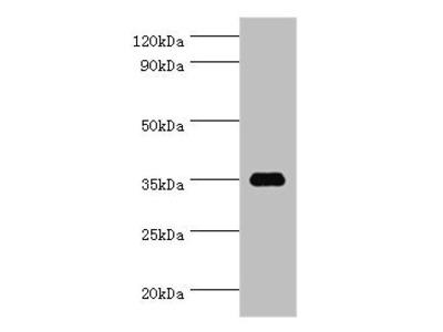 SULT1C2 antibody
