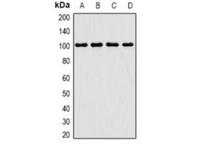 TGS1 antibody