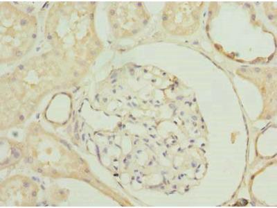 SLA antibody