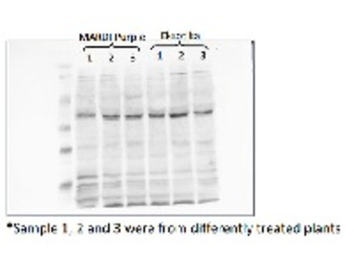 Anti- Cp2 ; Cysteine protease