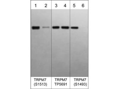 TRPM7 Phospho-Regulation Antibody