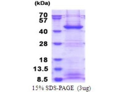 FBXO2 Recombinant Protein