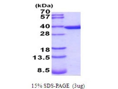 Annexin V Recombinant Protein
