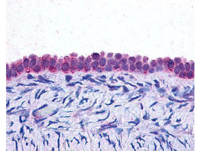 CEBP Beta Antibody (21A1)