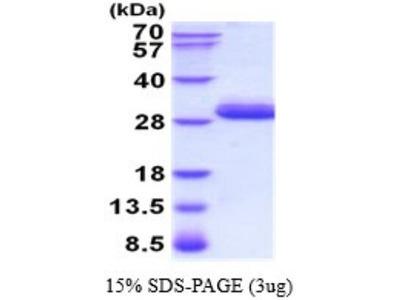 Trypsin 3/PRSS3 Recombinant Protein