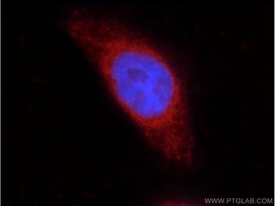 COX2/ Cyclooxygenase 2/ PTGS2 Polyclonal antibody - KD/KO Validated (171+ citations)
