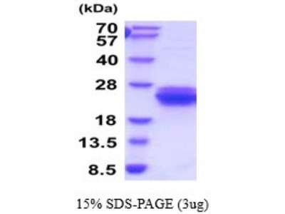 Dectin-1 / CLEC7A Recombinant Protein