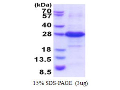 IYD Recombinant Protein