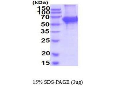 Tyrosine Hydroxylase Recombinant Protein