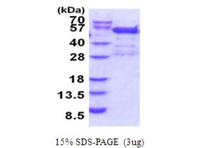 BRD2 Recombinant Protein