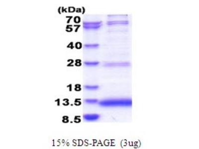 JTB Recombinant Protein
