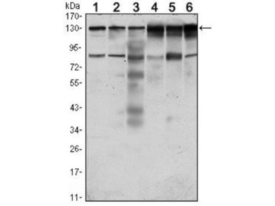 PTK7 / CCK4 Antibody (4F9)