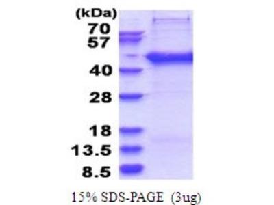 SERTAD2 Recombinant Protein