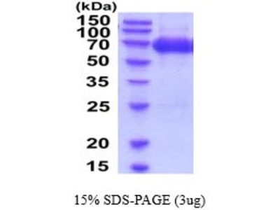 ICAM-1 /CD54 Recombinant Protein