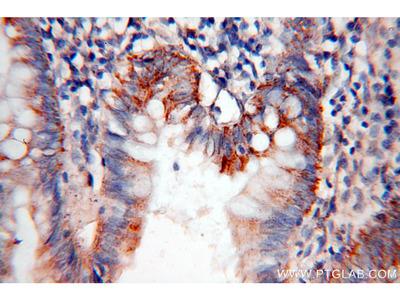 CCL28 Polyclonal Antibody