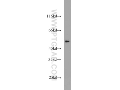 THRA antibody