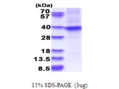 Recombinant Human HOXA9 Protein