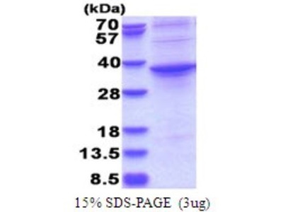ASPHD1 Recombinant Protein