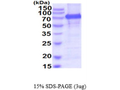 Recombinant Human Meprin alpha Subunit / MEP1A Protein
