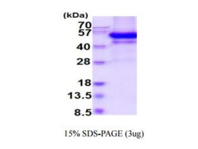 Testican 3 / SPOCK3 Recombinant Protein