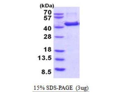 Aminomethyltransferase Recombinant Protein