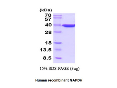 GAPDH, Active, human recombinant