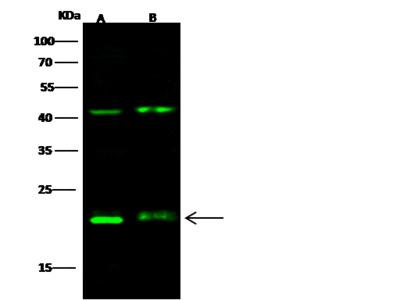 CD3g / CD3 gamma Antibody, Rabbit PAb, Antigen Affinity Purified