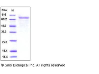 Human CSF2RA / GM-CSFR / CD116 Protein (Fc Tag)