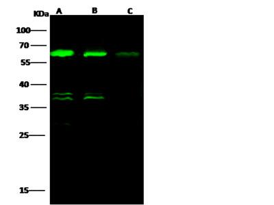 ALDH4A1 Antibody, Rabbit MAb