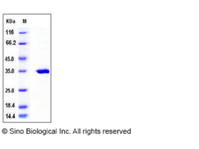 Human SULT2A1 / STD Protein (His Tag)