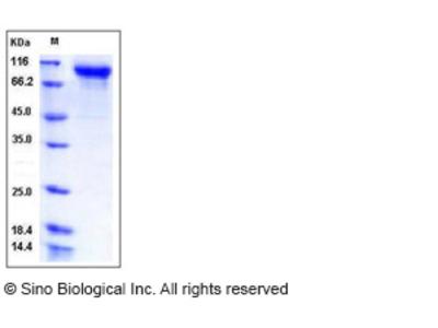 Human Semaphorin 6A / SEMA6A Protein (His Tag)