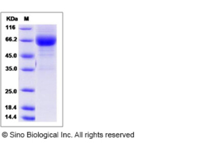 Rat LTBR / TNFRSF3 Protein (Fc Tag)
