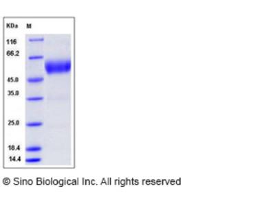 Human SCN3B Protein (Fc Tag)