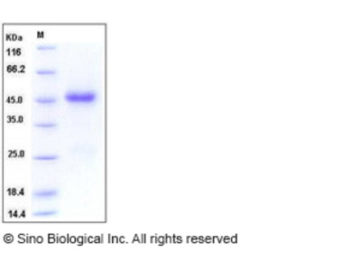 Human CCN3 / NOV Protein (His Tag)