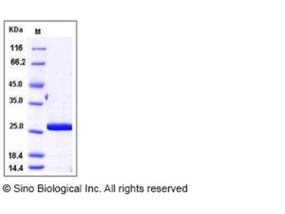 Human CRADD / RAIDD Protein (His Tag)