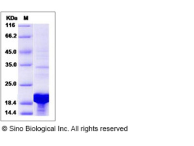 Human LSM1 Protein (His Tag)