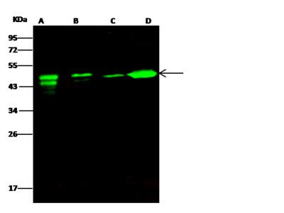 ATXN7L3 Antibody, Rabbit PAb, Antigen Affinity Purified
