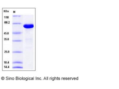 Human ANXA6 / Annexin A6 / Annexin6 Protein (His Tag)