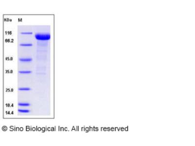Human Alkaline Phosphatase / ALPI Protein (Fc Tag)