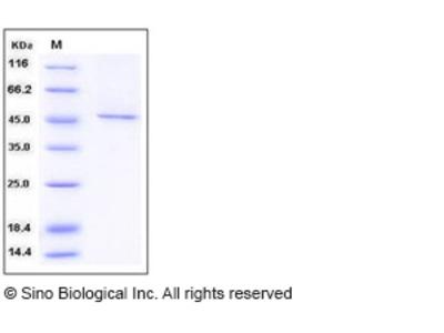 Human SMYD3 / ZMYND1 Protein (His & FLAG Tag)
