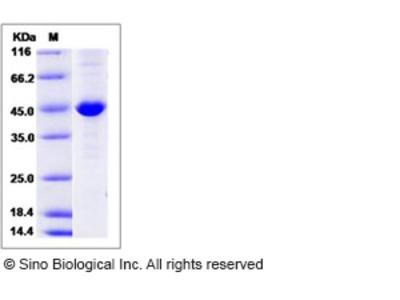 Human CKB / Creatine kinase B type Protein (His Tag)
