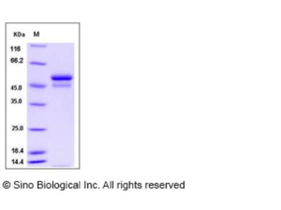 Mouse SerpinI1 / Neuroserpin Protein (His Tag)