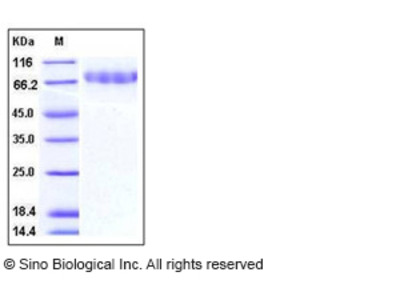 Mouse CLEC14A / EGFR-5 Protein (His Tag)