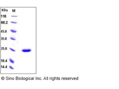 Human SDF2 Protein (His Tag)