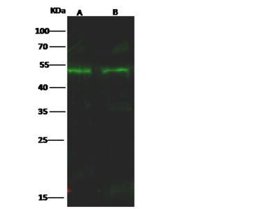 NR2F2/COUP-TF II Antibody, Rabbit PAb, Antigen Affinity Purified