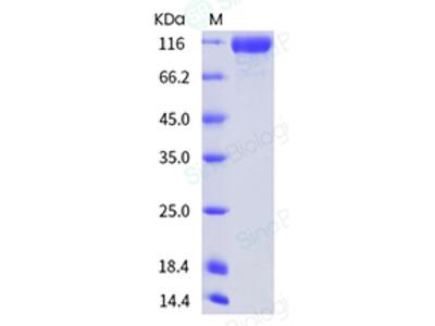 Mouse Semaphorin 4D / SEMA4D / CD100 Protein (ECD,His Tag)