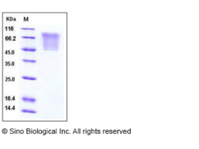 Human CCL5 / RANTES Protein (His & mucin Tag)