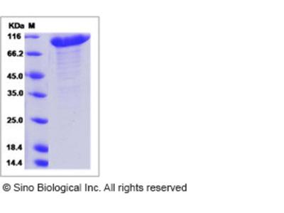 Human Semaphorin 3A / SEMA3A Protein (Fc Tag)