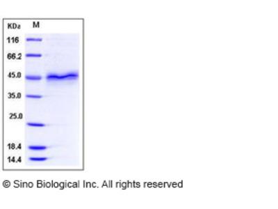 Human Follistatin / FST (FS288) Protein (His Tag)