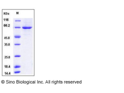 Mouse PLK1 / PLK-1 Protein (His Tag)